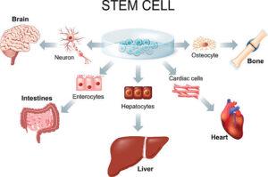 stamceltransplantatie parkinson